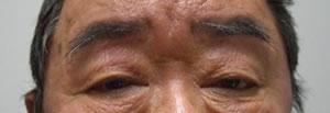 腱膜性眼瞼下垂術前