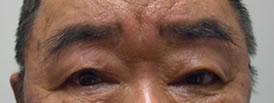 腱膜性眼瞼下垂術後