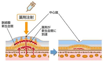抗VEGF薬硝子体内注射