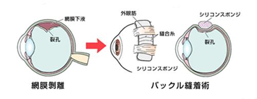 強膜内陥術(バックル縫着術)