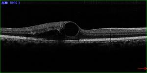 黄斑浮腫のOCT写真