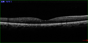 抗VEGF剤注射後のOCT写真
