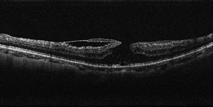 術前の黄斑円孔のOCT写真
