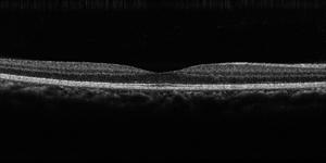 正常黄斑部のOCT写真