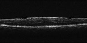 術前の黄斑上膜のOCT写真