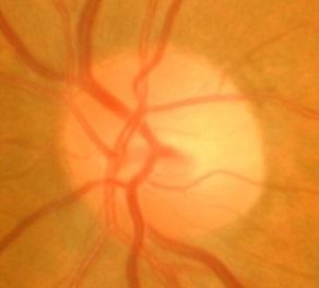 正常な視神経