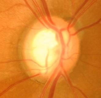 緑内障の視神経